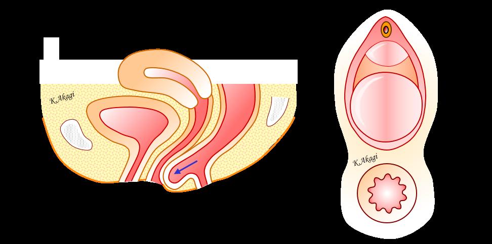 直腸瘤表紙用