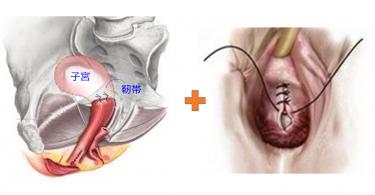 子宮脱・膀胱瘤の手術(メッシュを使わない方法)