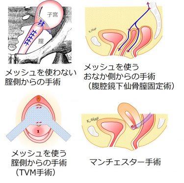 子宮脱膀胱瘤の手術にはどんな方法があるの? どうやって選ぶ?