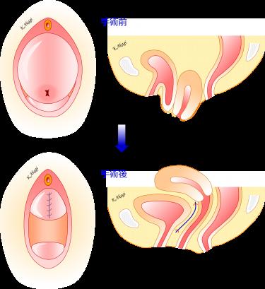 子宮脱・膀胱瘤の術式を比較する