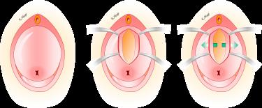子宮脱・膀胱瘤の手術成績
