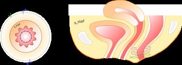 直腸脱と肛門機能障害