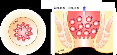 直腸脱の手術(三輪-Gant法)