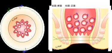 直腸脱の手術(ティールシュ法)