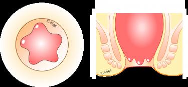 直腸脱のタイプ