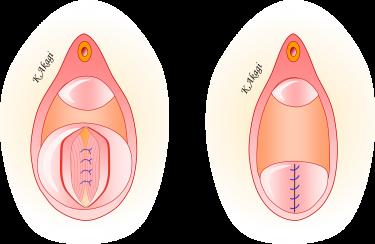 直腸瘤の手術(経膣手術)