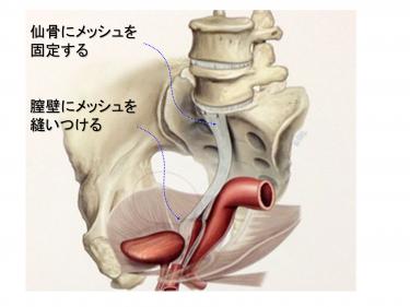 おなか側から行う手術(腹腔鏡下仙骨膣固定術)