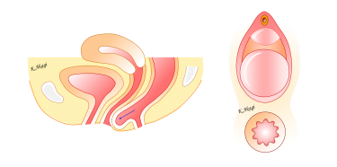 直腸瘤の手術は二種類あります。あなたに適した方法はこちら。