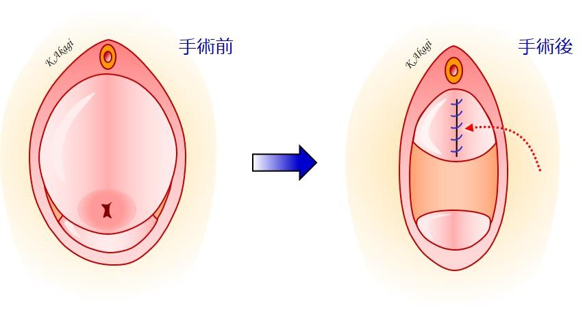後 子宮 脱 手術