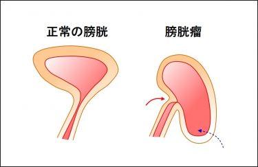 骨盤臓器脱手術を受けたら、排尿状態はどうなるの?