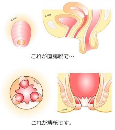 直腸脱は痔核とまぎらわしいので、誤診しないよう注意しています。