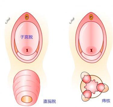 子宮脱に痔核や直腸脱を合併していても、同時に治します。