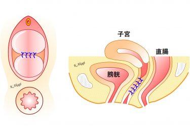 今は行わなくなった骨盤臓器脱の術式:膣閉鎖術