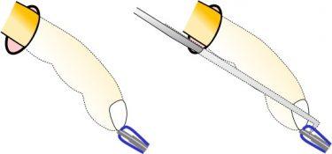骨盤臓器脱手術で二番目に重要な操作:穿刺(せんし)について