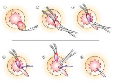 今週の骨盤臓器脱手術は6例。痔核手術は突き詰めると難しいんです。