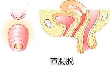 直腸脱が戻らない! とりあえず戻し方を教えてほしいです。