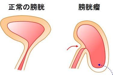 手術で膀胱瘤が治ったら、過活動膀胱の薬を卒業できることが多いです。