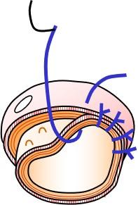 たまーに行っている直腸脱の術式②:アルテマイヤー法