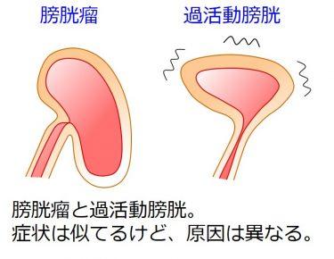 膀胱瘤で膀胱が下がって頻尿になった? 薬で粘らず膀胱瘤自体を治しましょう。