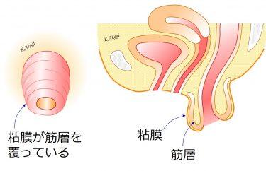 直腸脱手術:術式の使い分けと入院スケジュール